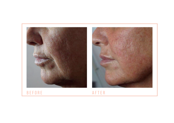 Before and after Jowl LiftNon-surgical facial with jowl lift at mojo hair and beauty salon chorley