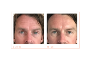 Male Non Surgical Facial Toning Before and After at mojo beauty salon chorley