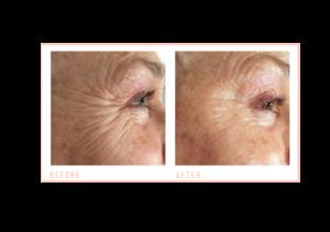 before and after Eye Revive at mojo beauty salon chorley