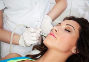 microdermabrasion facial treatments at mojo beauty salon chorley